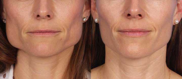 Masseter Muscle Reduction (Jawline Reduction)