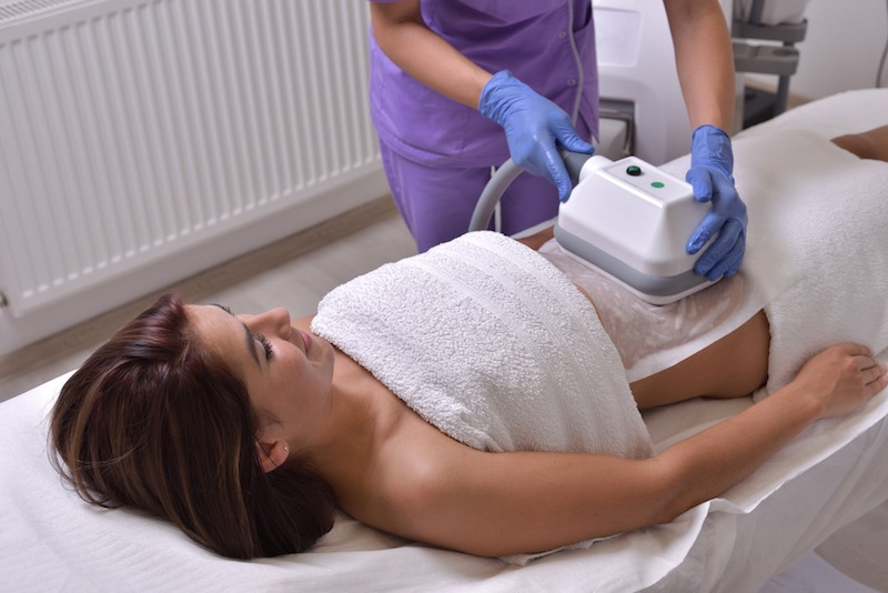 coolsculpting san diego treatment