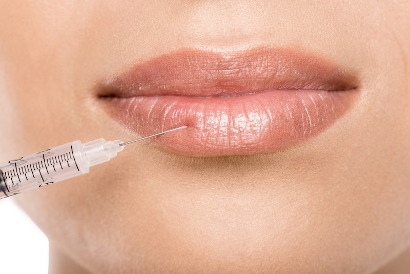 Lip Injection Facts: Everything You Ever Wanted to Know