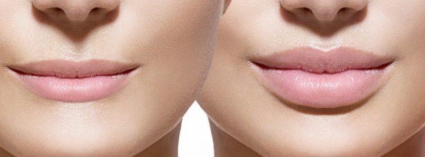 before and after lip fillers san diego