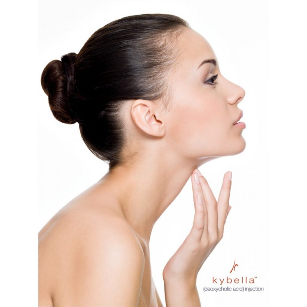 women after kybella in san diego