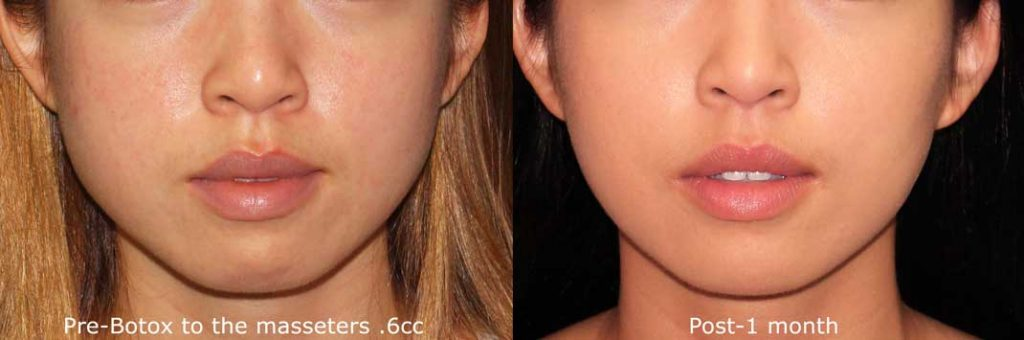 4 Types of Jawline Reduction and Enhancement