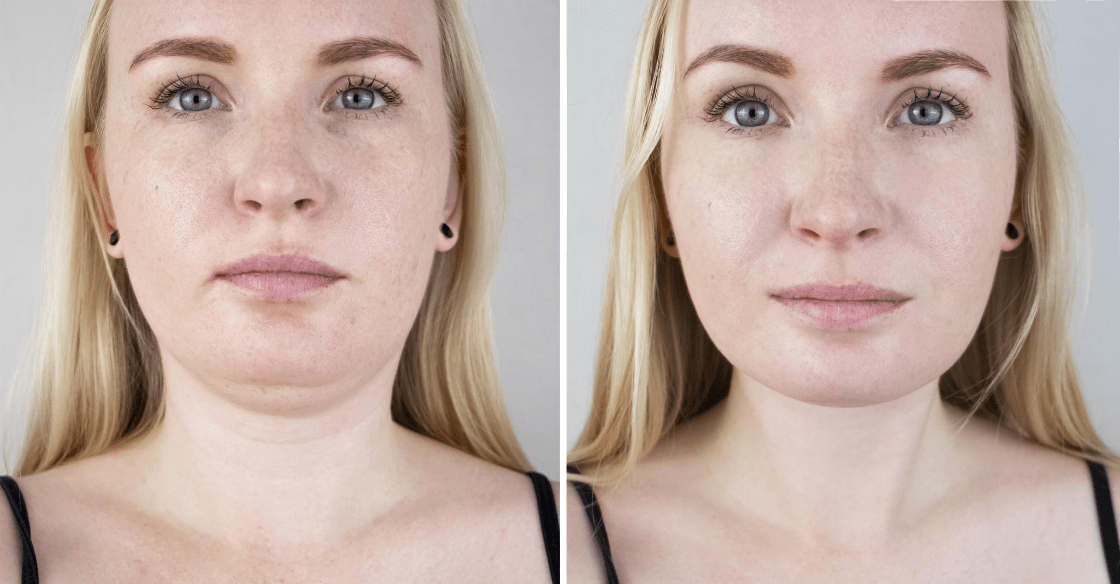 Kybella used to reduce under chin fat