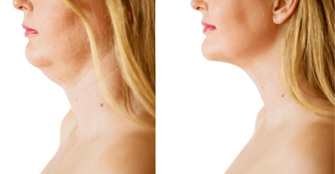 Dermal fillers to decrease under chin fat