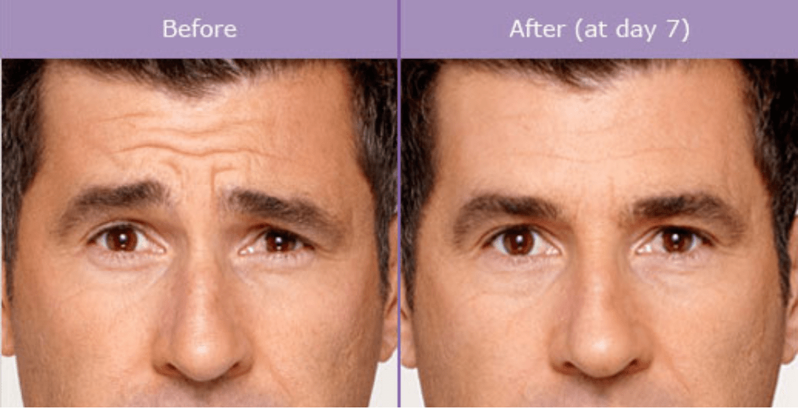 A brown haired man before and after Botox pictures.