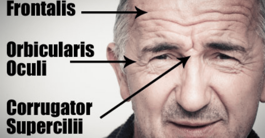 Infographic that explains the areas where wrinkles occur on the face.