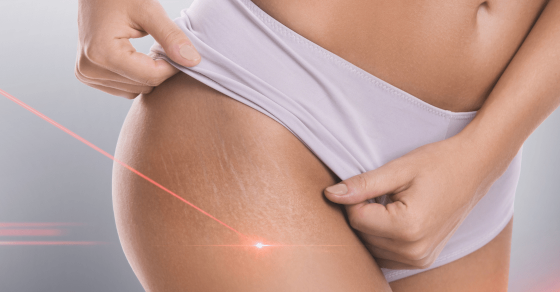 Laser stretch mark removal on legs