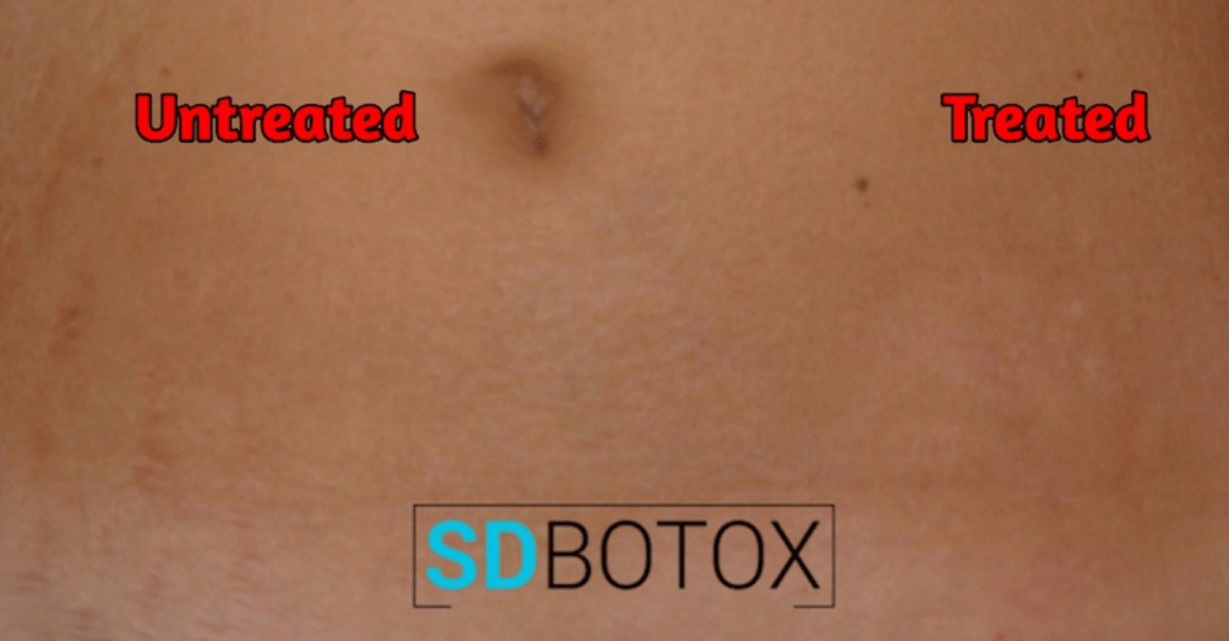 difference made from laser stretch mark removal therapy