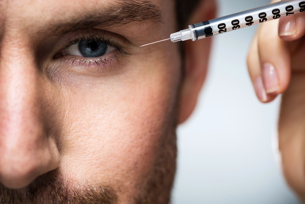 botox for guys in San Diego