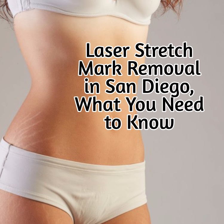 San Diego Stretch Mark Removal
