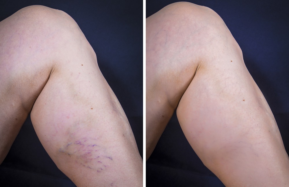 cosmetic vein before and after