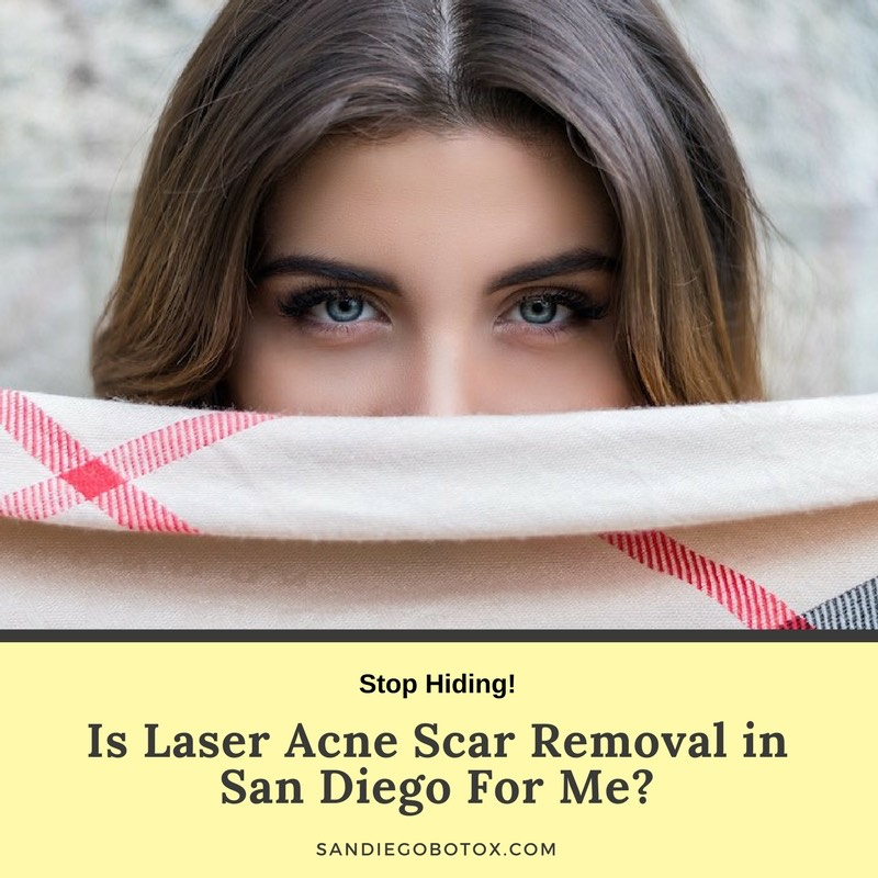 Is Laser Acne Scar Removal in San Diego For Me?