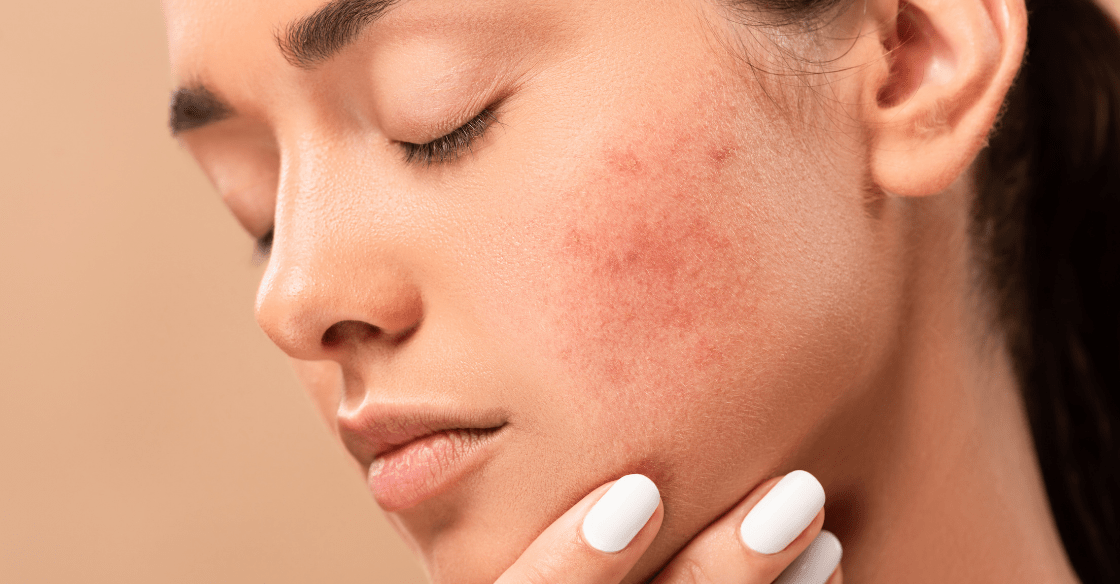 Young woman with acne