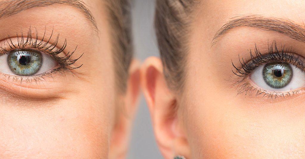 remove dark circles permanently