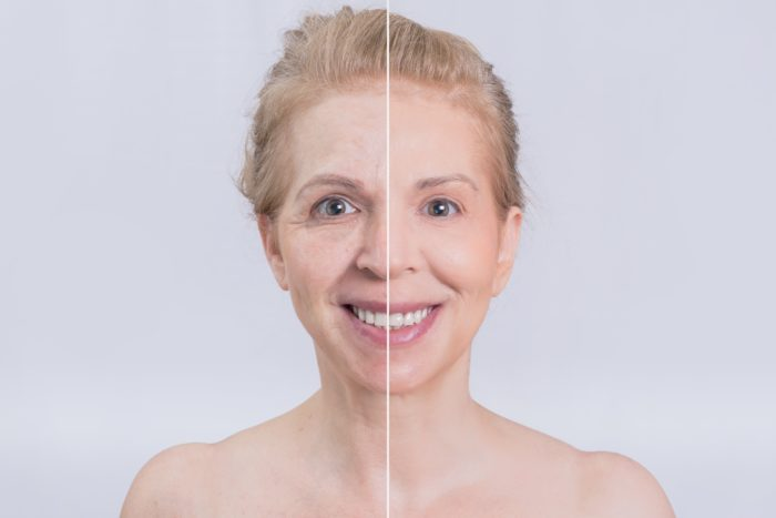 how much does botox cost SDBotox