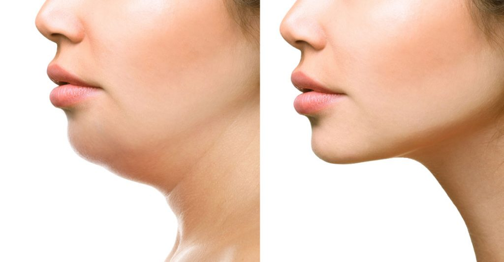 chin fat removal SDCoolsculpting