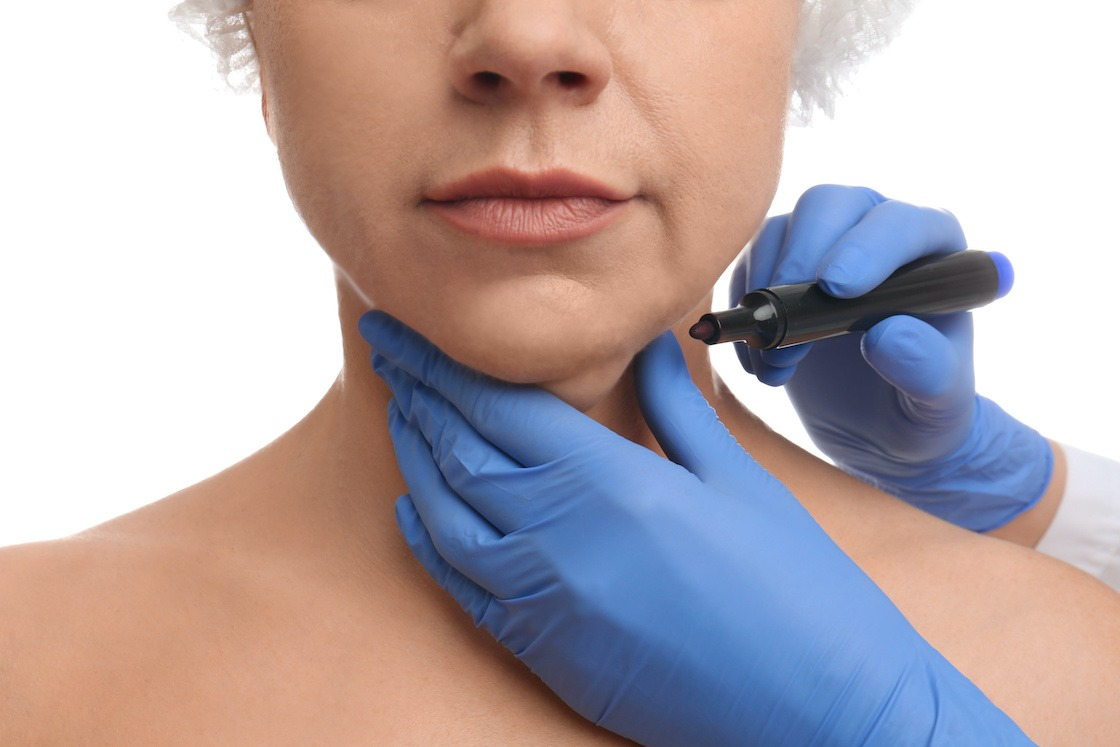 Surgeon with marker preparing woman for operation against white background, closeup. Double chin removal