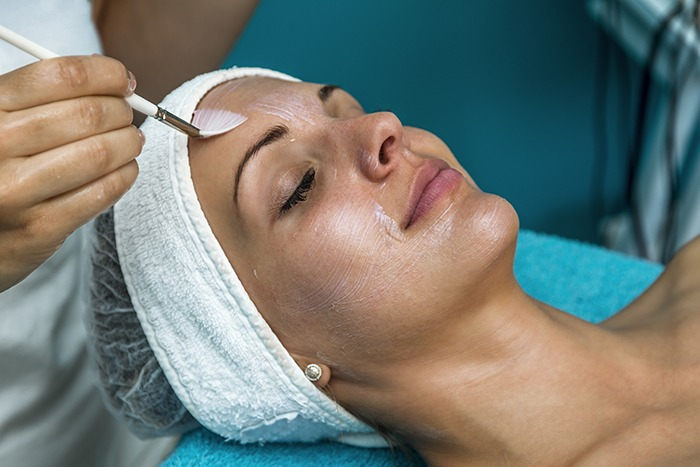 chemical peels SDBotox
