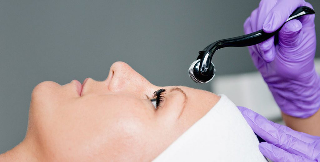 4 Things You Didn't Know About Collagen Induction Therapy