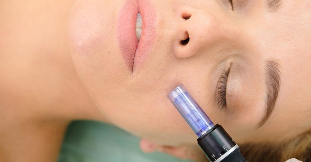 Decided You Want to Do Microneedling? Here's What to Expect