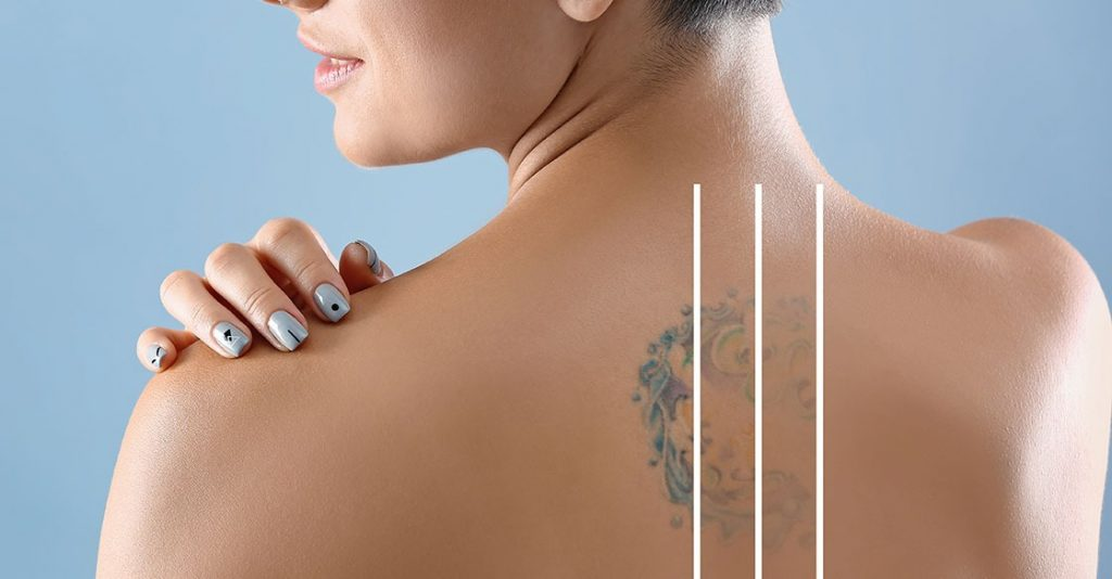 Laser Tattoo Removal: Everything You Need to Know