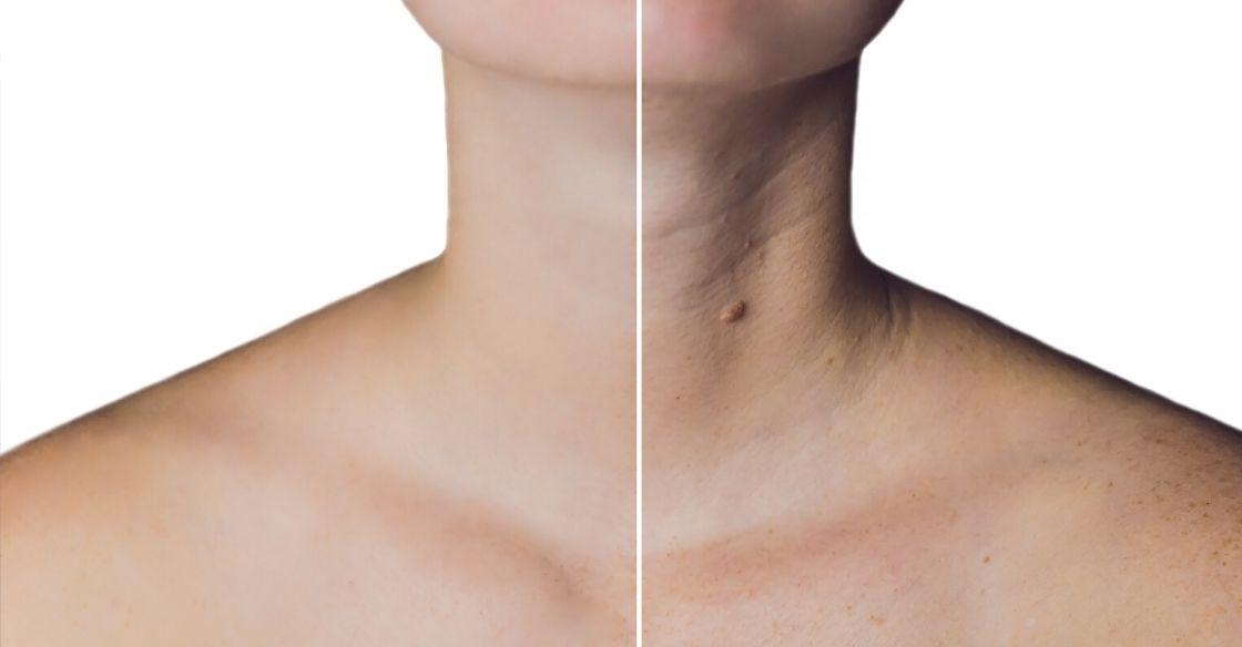 Neck botox