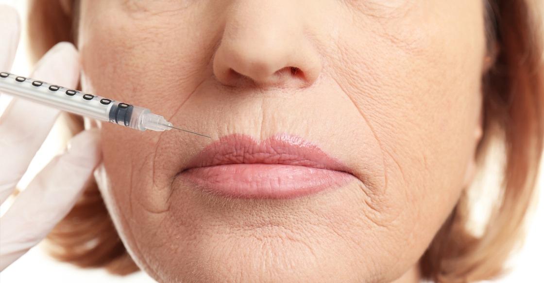 Mouth Botox