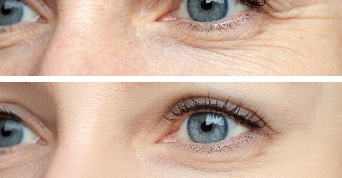 Botox for eyes