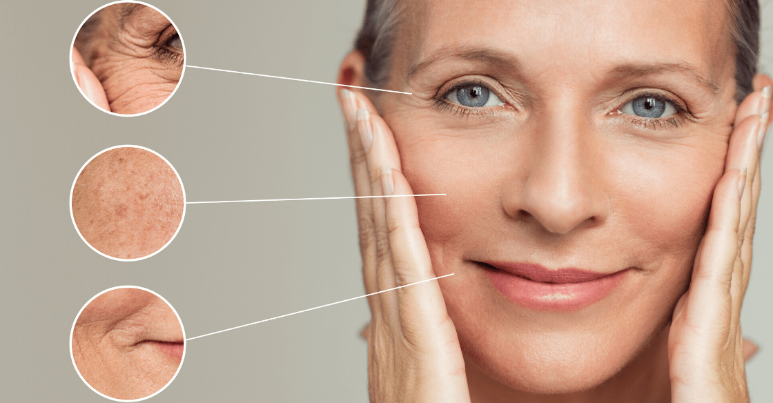 Cosmetci treatments in your 40's and up