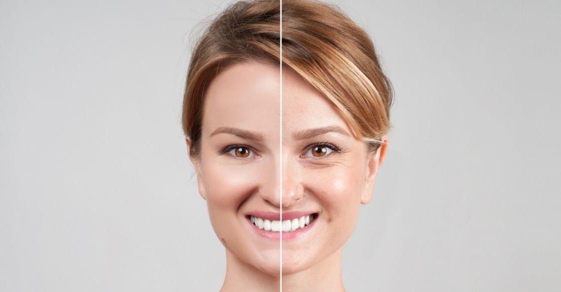 Cosmetic treatments in your twenties