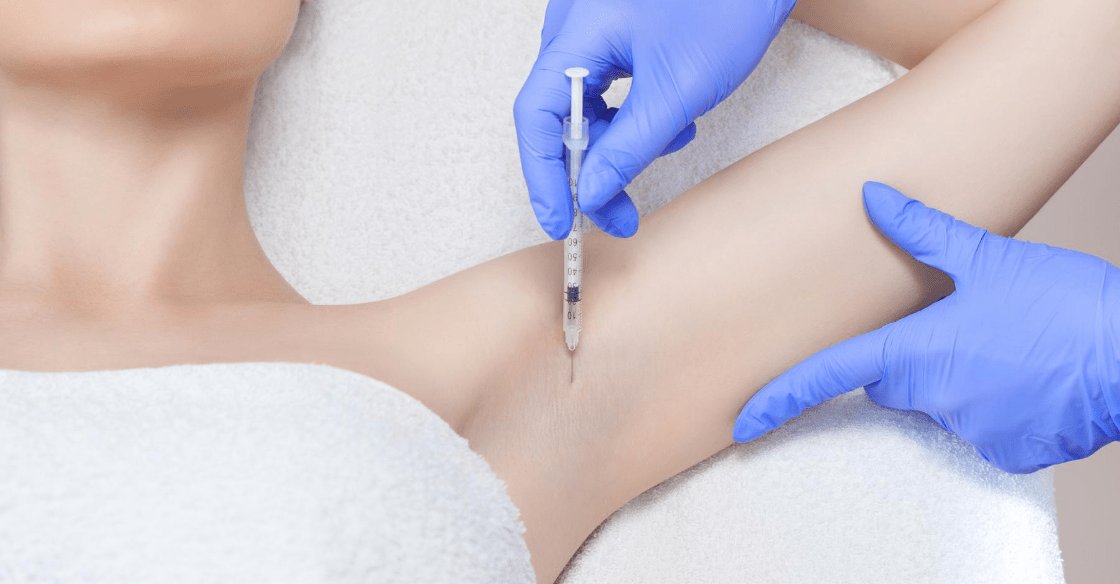 Botox injection for excessive sweating