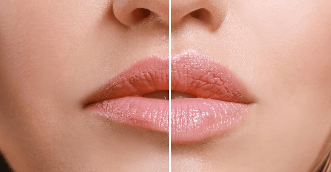 Dermal Lip Filler before and after