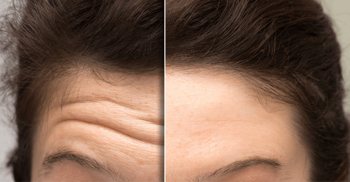 Forehead Botox before and after