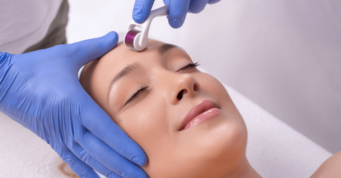 Mircroneedling treatment