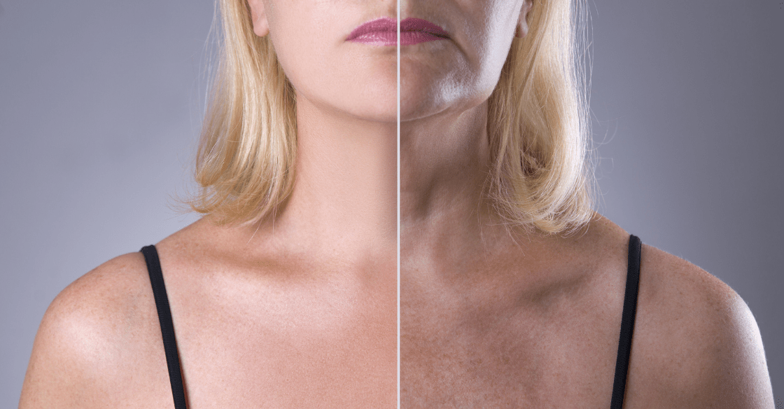 Before and after neck rejuvenation