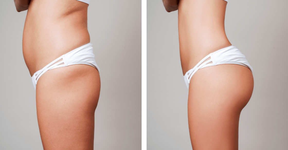 Before and after body contouring