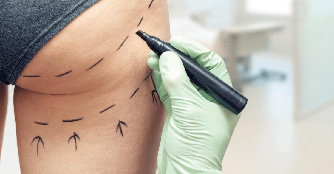 Woman preparing for a QWO cellulite reduction treatment