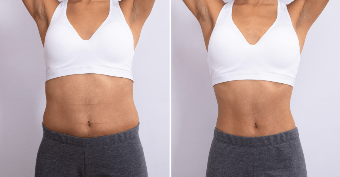 Abs before and after body contouring